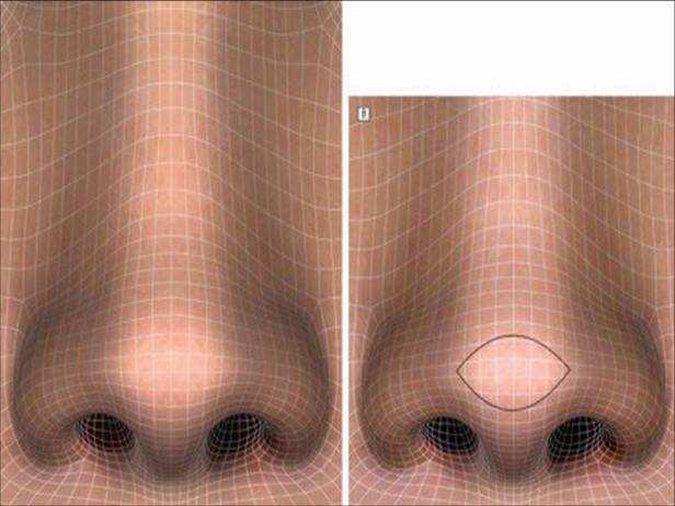 美莱做鼻头缩小整形手术多少钱
