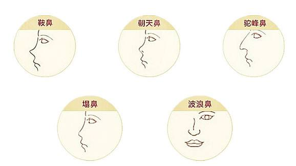 上海一些医院做鼻综合整形手术多少钱