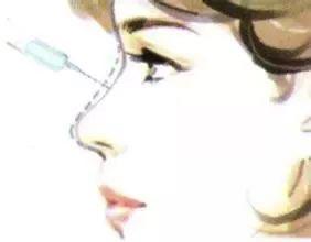 美莱隆鼻教科书-假体隆鼻与注射隆鼻,你选对了吗