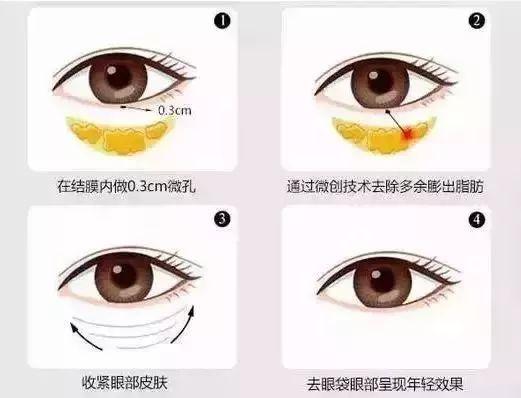 在上海如何去眼袋效果才能更安全