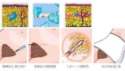 上海地区做了腹部吸脂影响以后怀孕吗