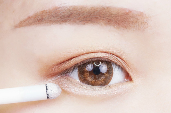 上眼皮下垂矫正手术的费用要多少呢