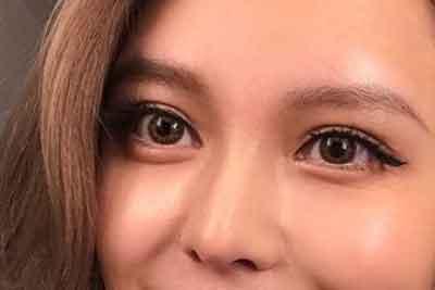 上海美莱免拆祛眼袋的优势是什么