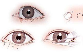 美莱眼部整形术前必看 割双眼皮常见误区
