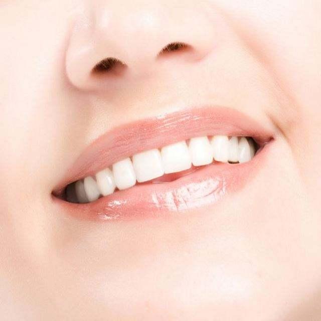 【美莱牙齿矫正】产生牙间隙的原因很多,你读懂了吗