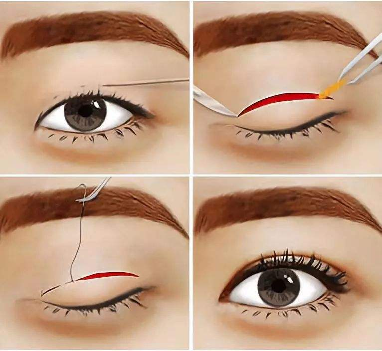 美莱做双眼皮手术到底贵不贵