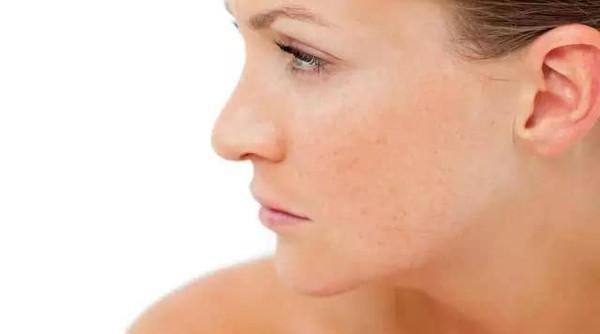 打完瘦脸针多久可以见效呢,哪些人不适合呢
