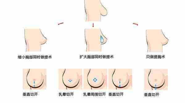 乳头过大怎么办,上海做乳头缩小术选哪种好