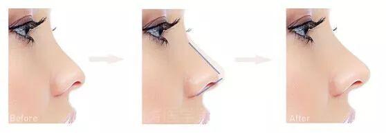 线雕鼻可以垫高鼻梁吗美莱