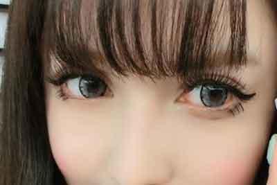 眼睛近视了还可以做上海韩式双眼皮吗