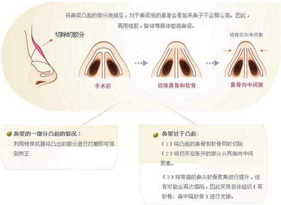 驼峰鼻矫正价格是怎么样的在上海