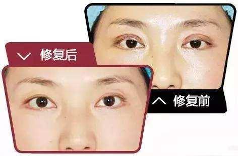 双眼皮全切修复美莱做的好不好