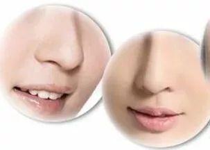 美莱做鼻翼缩小手术的内切外切,有什么区别呢