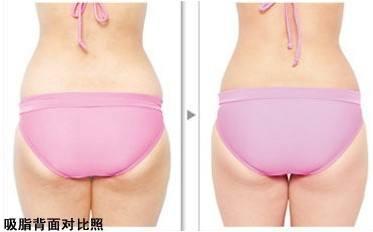 在上海做了臀部吸脂后需要注意什么护理