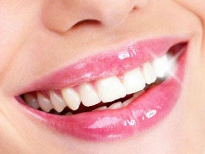 上海做激光美白牙齿的价位大概是多少呢