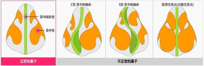 在上海做了自体软骨隆鼻术后会被吸收吗