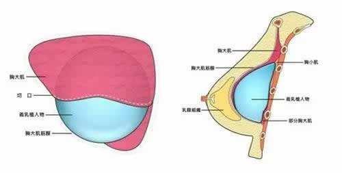 上海做了假体置放到体内之后切口怎么办