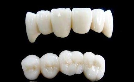 美莱全瓷牙修复门牙效果真的好吗
