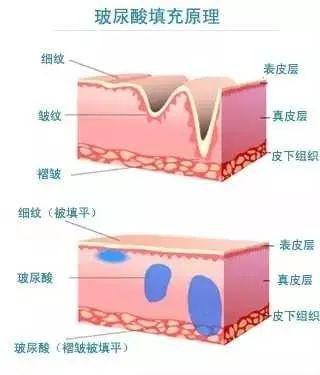 美莱科普|注射玻尿酸后皮肤会变得很松弛吗