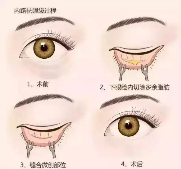 上海哪家整形医院眼袋做的好