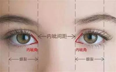 为什么总是建议双眼皮要和开眼角一起做