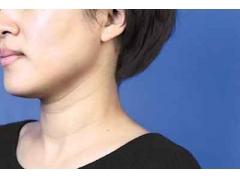 做祛颈纹手术上海哪家医院比较好