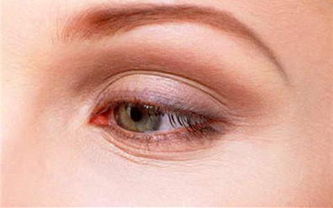 上海割双眼皮的恢复期大概是多久呢