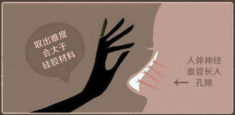 上海做膨体隆鼻对身体有害吗,有什么优缺点