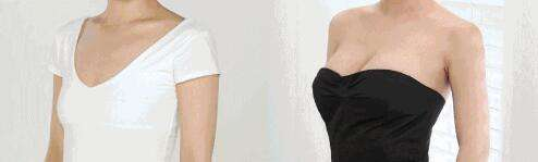 美莱整形给予您合适胸型
