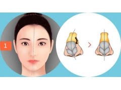 美莱做歪鼻矫正手术大概要花多少钱
