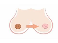 上海美莱乳晕整形手术一般需要多少钱