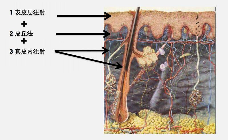 美莱菲洛嘉氧气动能素|优雅女神解决您皮肤问题