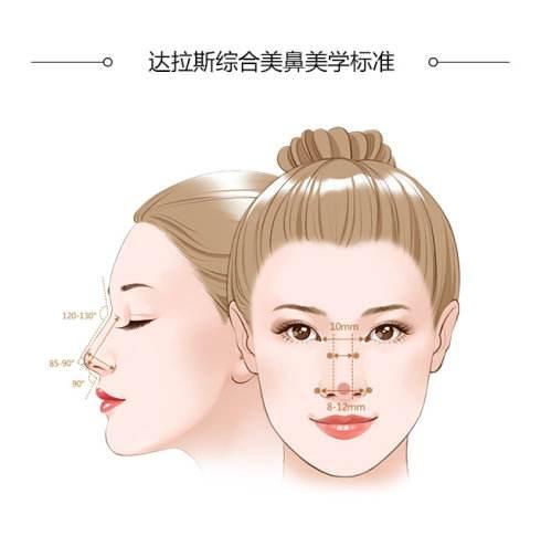 上海一般做达拉斯隆鼻大概多少钱