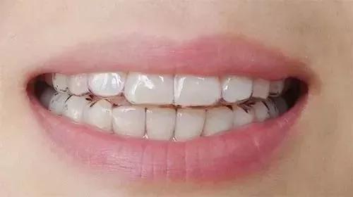 上海做无托槽隐形牙齿矫正手术大概多少钱