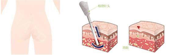 上海做共振吸脂手术安全吗