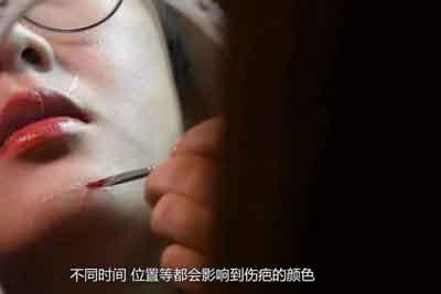 上海激光祛疤手术费用大概是多少