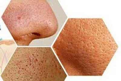 上海彩光嫩肤收缩毛孔的价钱是多少