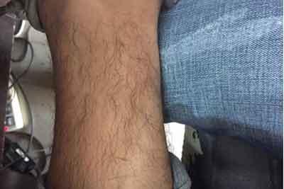 激光脱腿毛价格的价格是多少,会很贵吗