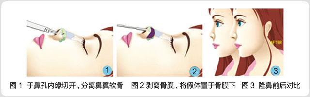 假体隆鼻多少钱在上海地区
