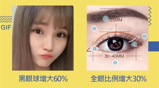 上海美莱做开眼角效果安全吗