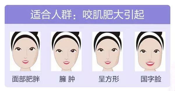 美莱微整形瘦脸针效果到底能够持续多久