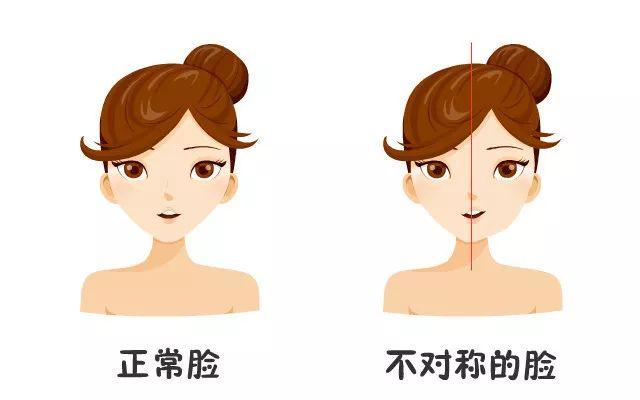美莱瘦脸针:咬肌肥大是怎么形成的
