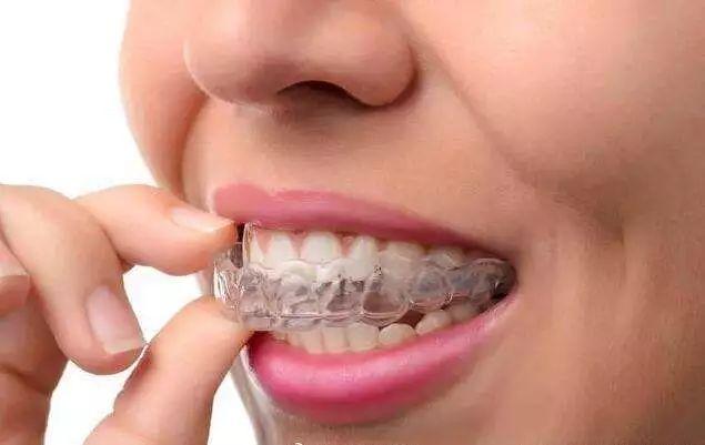 上海做隐适美隐形牙齿矫正的优势都有哪些呢