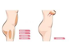 自体脂肪隆胸我们需要知道什么呢