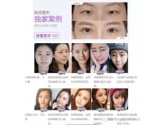 上海美莱修复双眼皮厉害吗