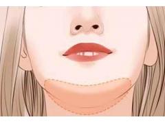 双下巴吸脂手术在上海做要多少钱