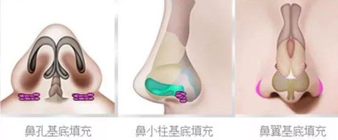 上海美莱隆鼻术|轻松拥有侧颜杀