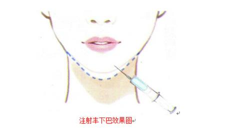 美莱下巴注射玻尿酸后注意有哪些