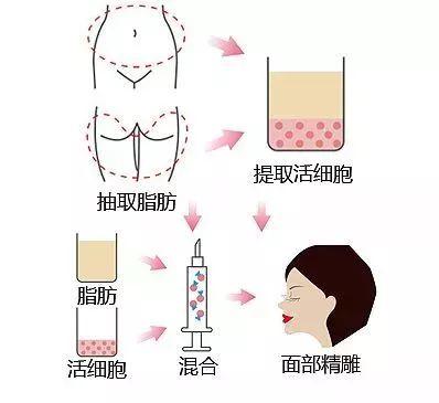 美莱自体脂肪填充脸部可以维持多久