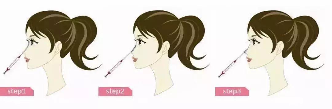 上海注射玻尿酸隆鼻能维持多久